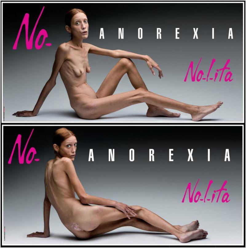 aanorexia